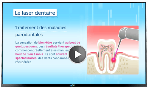 TV Dentiste